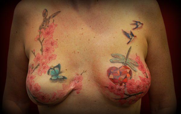 Medische en borst tatoeages